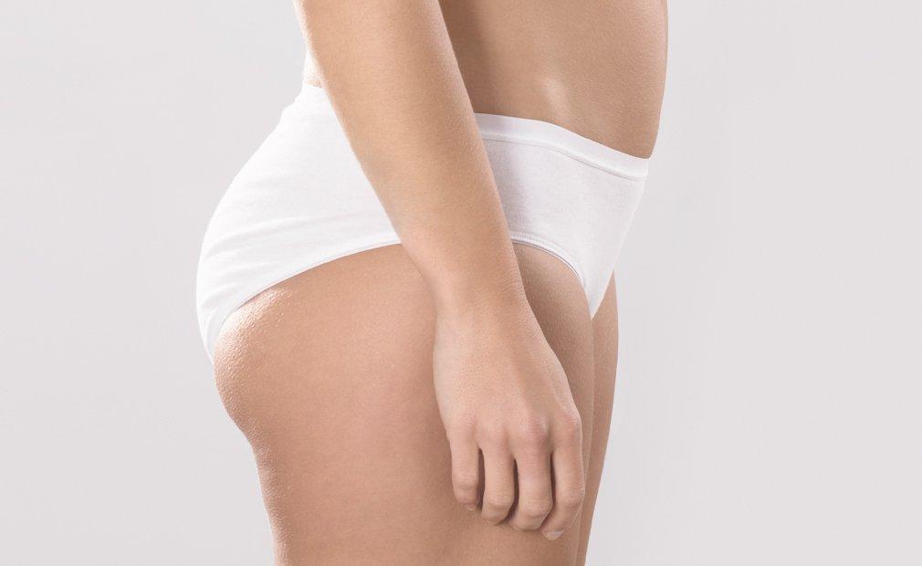Implant de fese